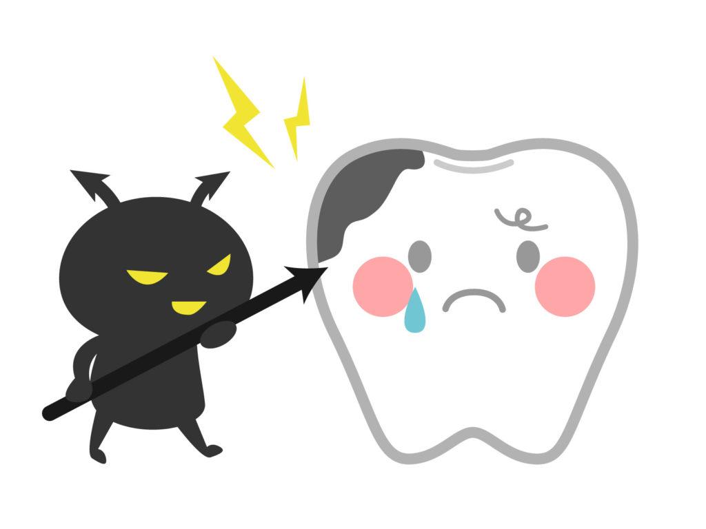 猿でもわかる虫歯の説明