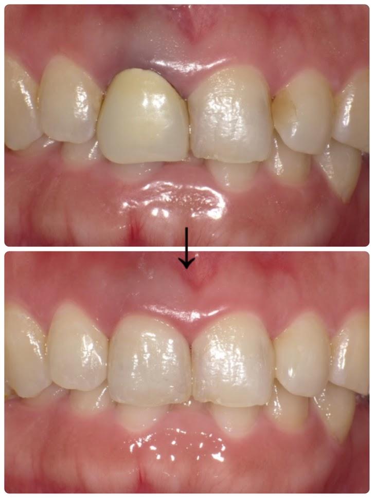 歯茎のアンチエイジング