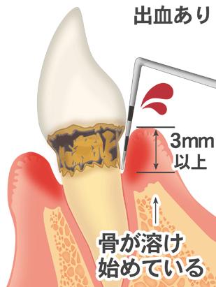あなたの歯周ポケットは何ミリですか