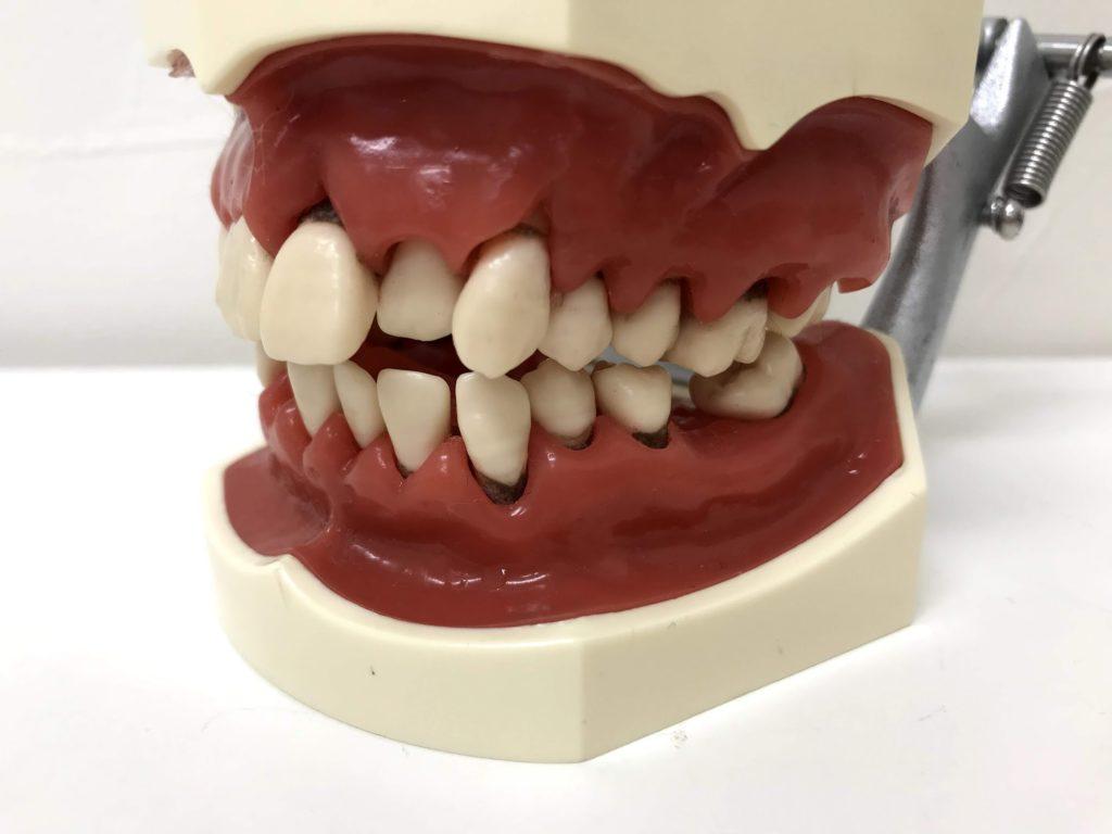 ガッカリ歯茎